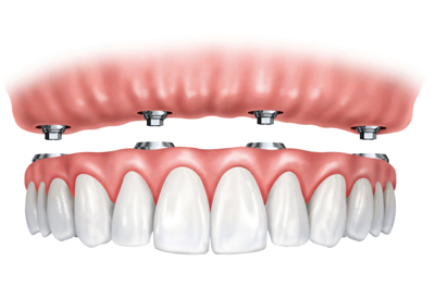 Implant Supported Dentures in Burley, ID