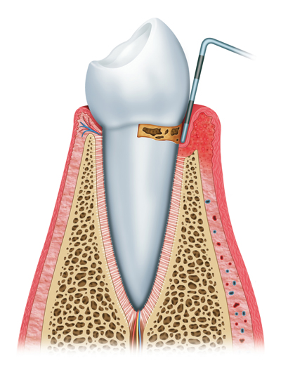 Stages of Gum Disease Burley, ID