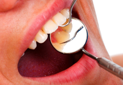 Oral Cancer Screening in Burley, ID